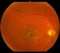 眼の病気Q&A